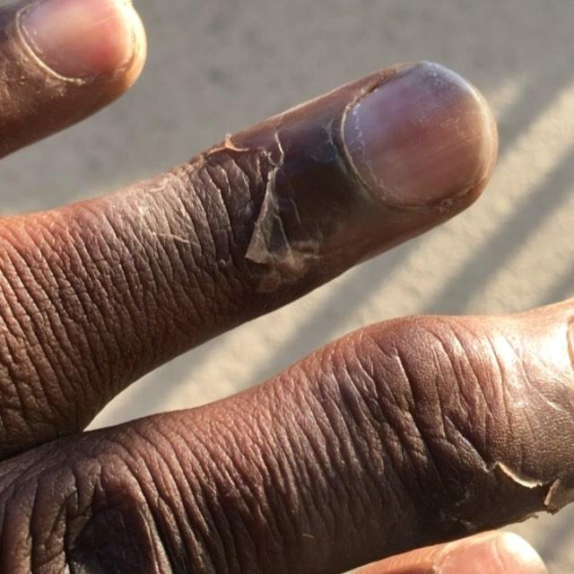 Kam Chancellor's Fingers Still Frostbitten After ...