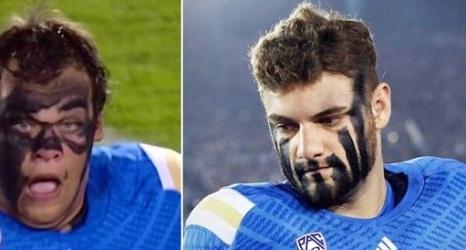 Ucla Football Bruins Players Go Nuts On Eye Black Photos