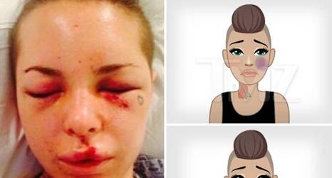 Black Violent Porn - Porn Star Christy Mack -- Creates Domestic Violence Emojis ... Black Eyes,  Bruises (PHOTOS)